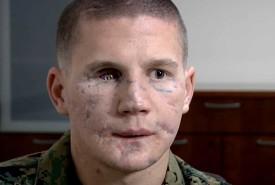 William Kyle Carpenter, Medal of Honor recipient